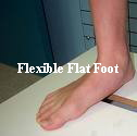 flexible flat foot