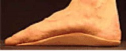 orthotics use two wedges